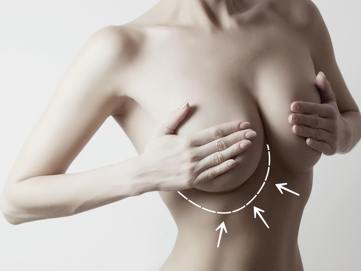Brust op asymmetrische transgender brustwachstum